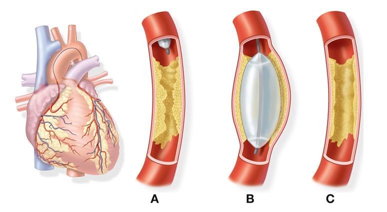 Balloon Angioplasty Linked to Fatal Neurological Events: Is It Really True?