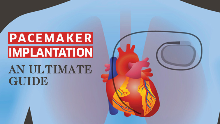 Pacemaker-Implantation-Surgery