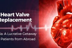 Heart Valve Replacement in India A Lucrative Destination for Patients from Abroad