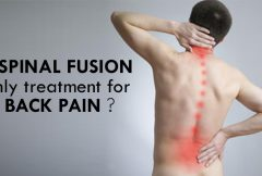 Is Spinal Fusion Only Treatment for Back Pain?