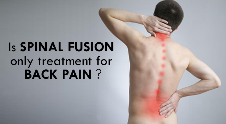 Is Spinal Fusion Surgery Always Recommended For Back Pain?