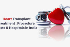 Heart-Transplant-Treatment