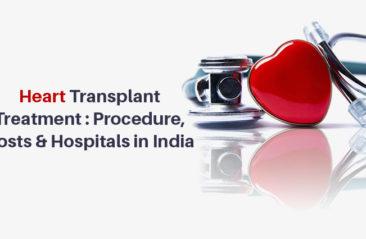 Heart-Transplant-Treatment