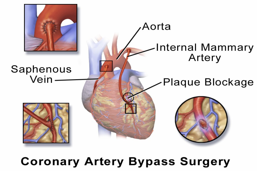 what is the coronary artery bypass graft