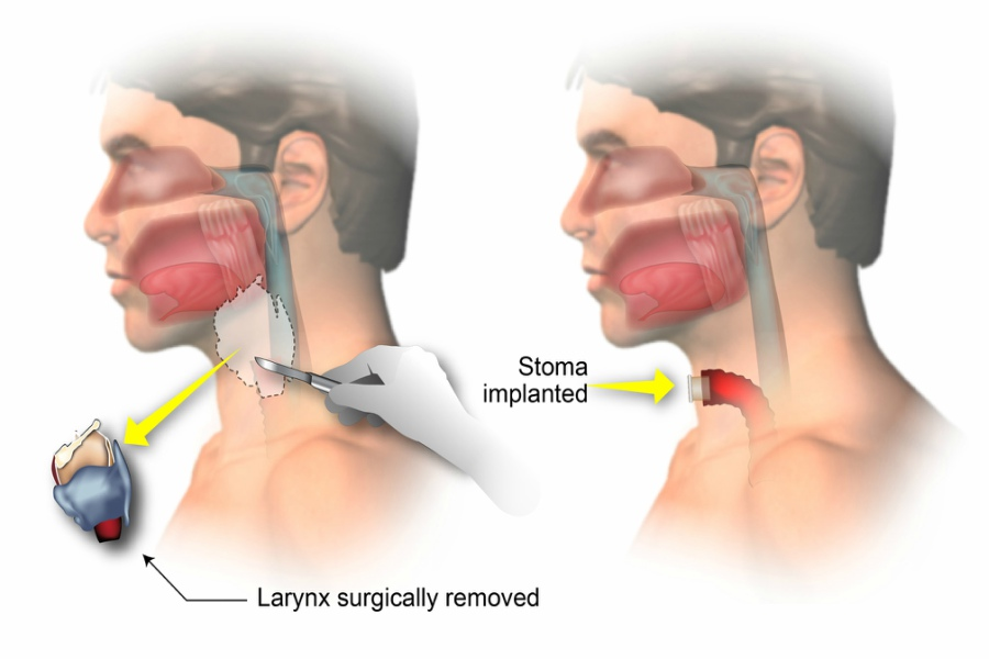 Laryngectomy Treatment & Cost Guide