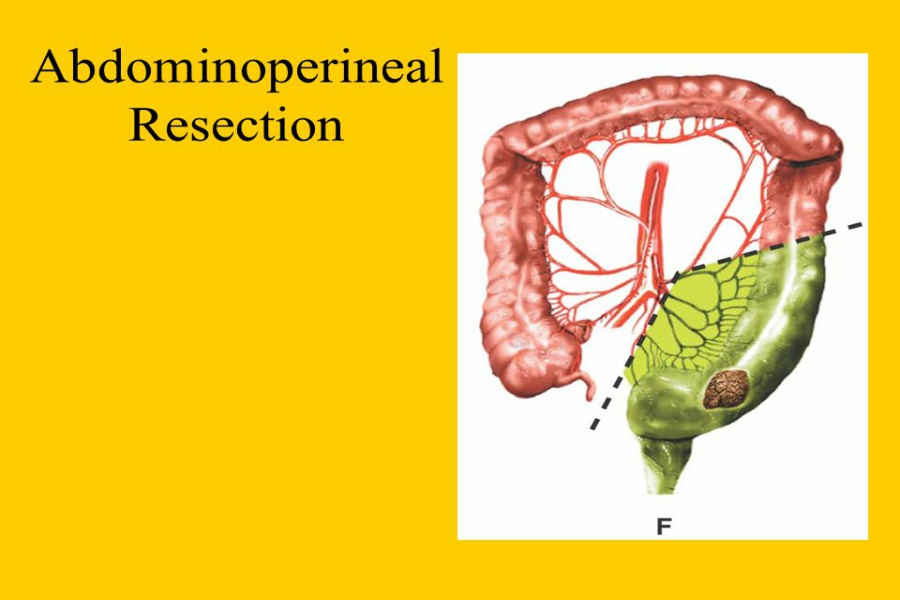 Abdominoperineal Resection