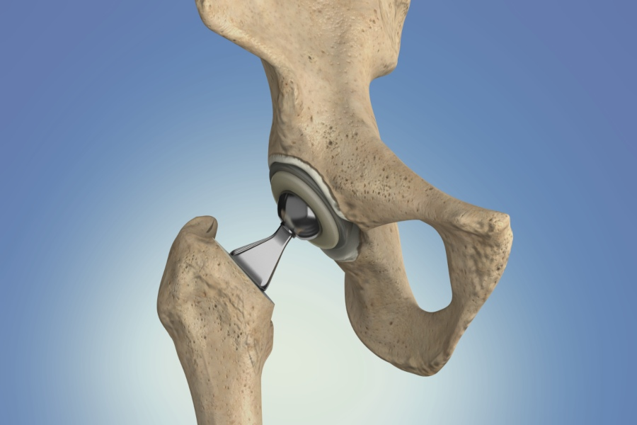 Total Hip Replacement U/L